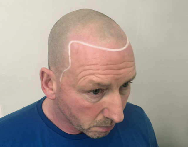 Roy Before Scalp Micropigmentation 2