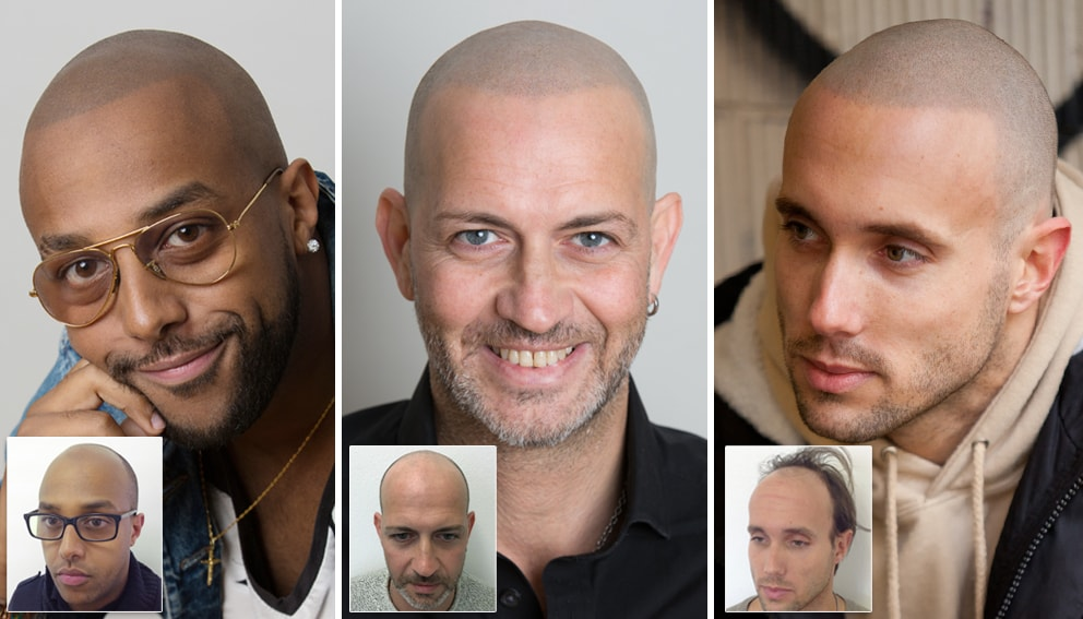 Scalp Micropigmentation Reviews of Skalp