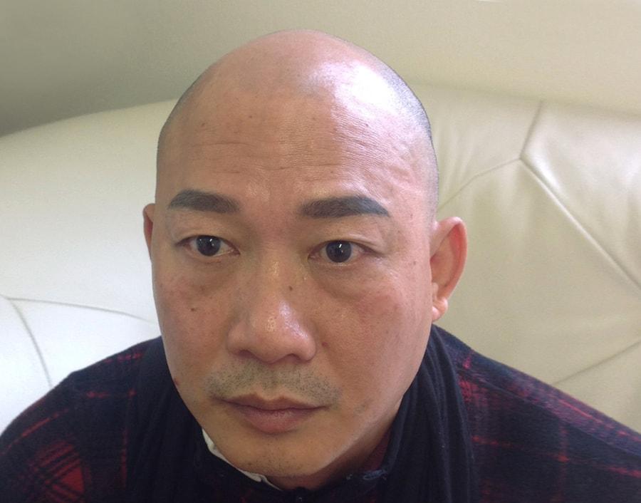 Thim Before Scalp Micropigmentation