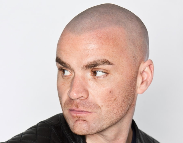 Tom After Scalp Micropigmentation 2