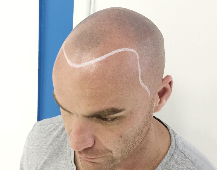 Tom Before Scalp Micropigmentation 2