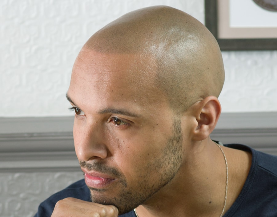 Tristan After Scalp Micropigmentation 2
