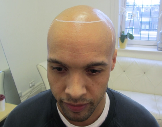 Tristan Before Scalp Micropigmentation 1