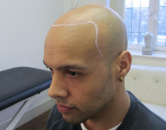 Tristan Before Scalp Micropigmentation 2