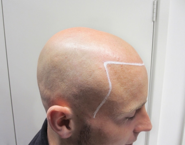 Tristan T Before Scalp Micropigmentation 2