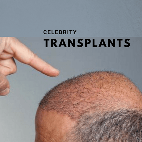 Celebrity hair transplants in the news rightnow. Finger pointing at a hair transplant hair