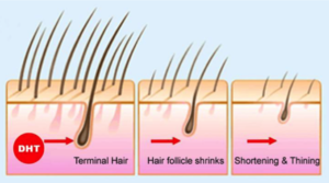 How exactly does DHT's role on baldness cause hair loss?