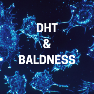 what is DHT's role in baldness and hairloss