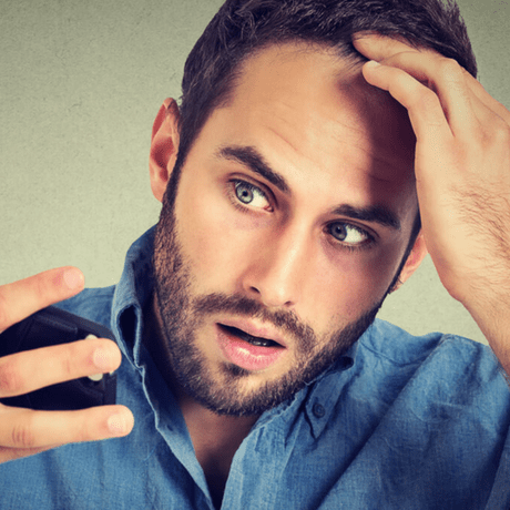 man looking anxious about thinning hair and hair loss