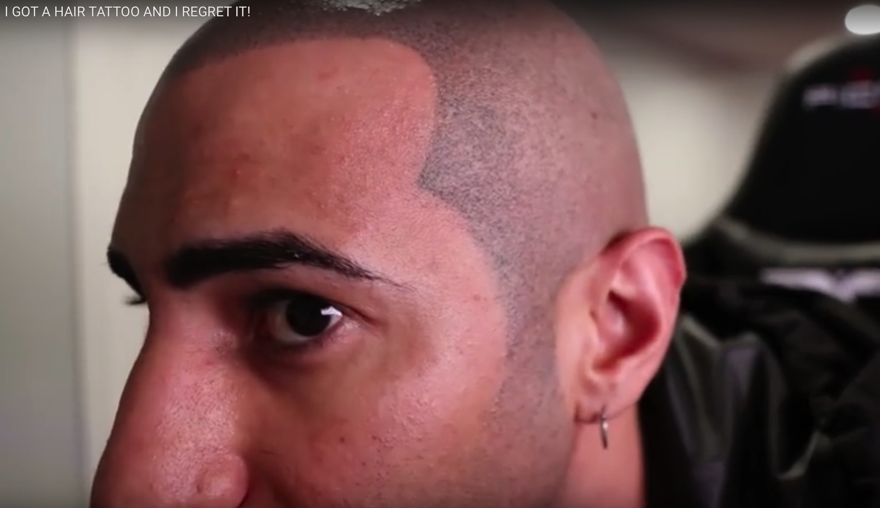 Scalp micropigmentation regrets youtuber skalp for Hair tattoo cost