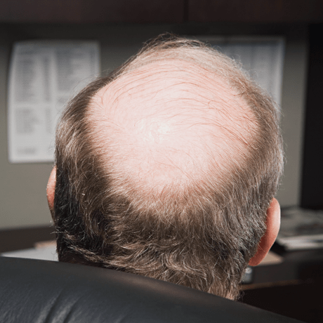 Going Bald looks like this, bald patch on crown