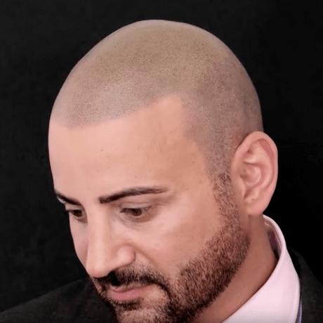 James Hair Replacement London Skalp Clinic
