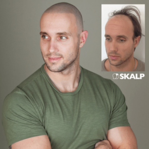 Scalp micro pigmentation valentines gift for bald men