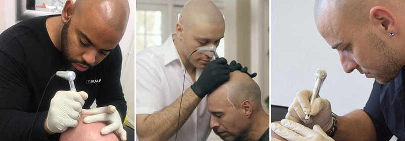 Scalp Micropigmentation Franchising