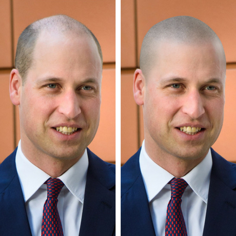 prince williams shaved head- should prince william get scalp micro pigmentation before and after