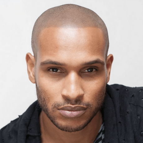 benefits of hairline micropigmentation in nyc at skalp usa