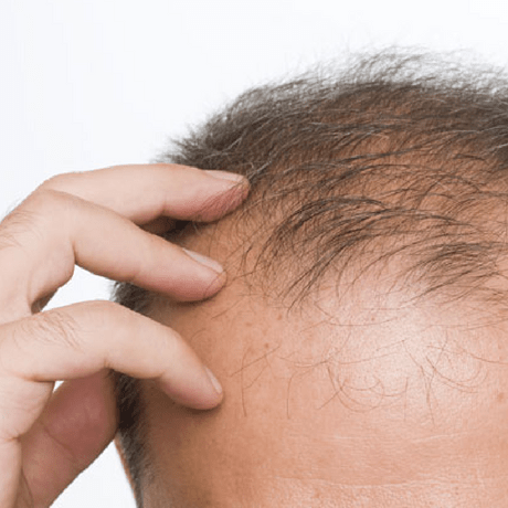the problem with hair transplants blog post