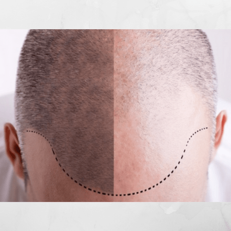 what is male pattern baldness
