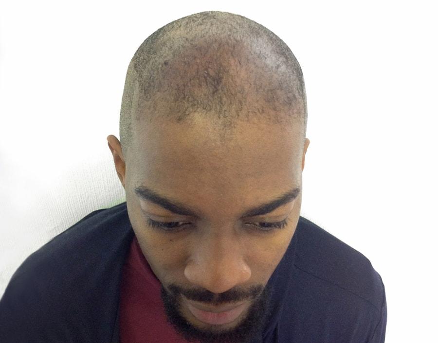 Fabrice Before Scalp Micropigmentation