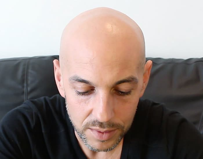 Luis Before Scalp Micropigmentation SMP