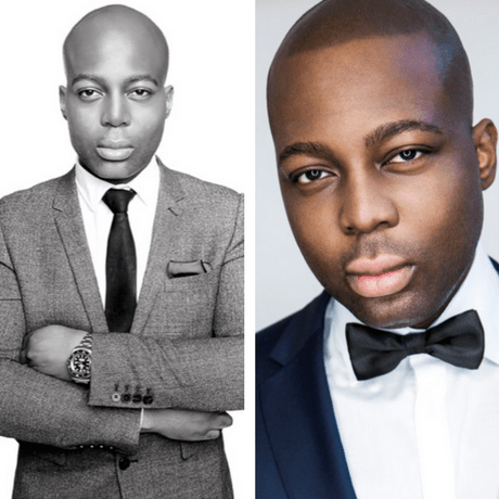 celebrities with smp scalp micro pigmentation