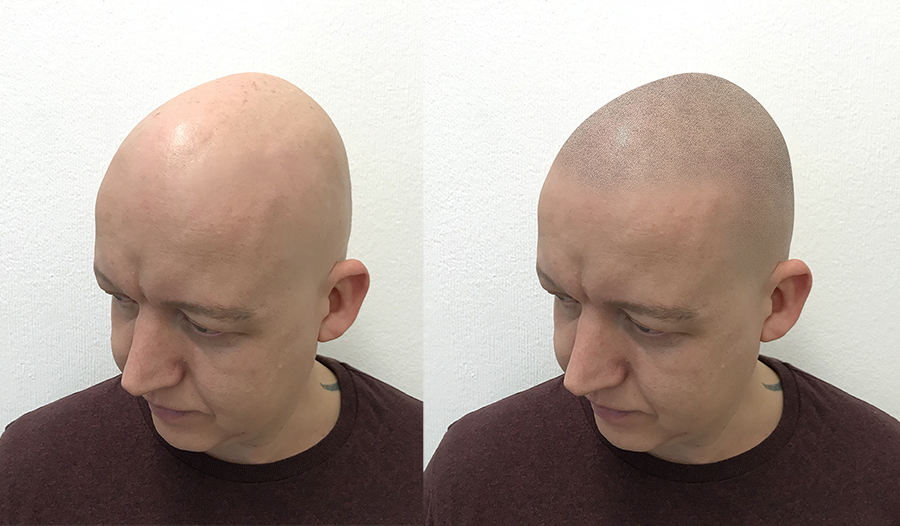 Virtual tattoo hairline mock-up of scalp micro pigmentation on ben from ttny