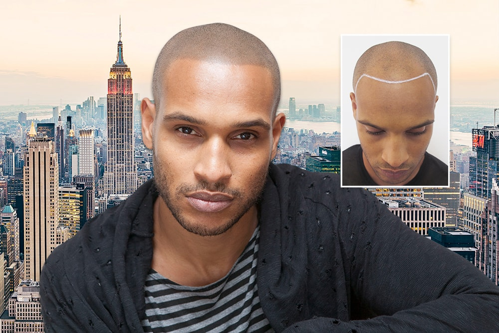 Scalp Micropigmentation New York