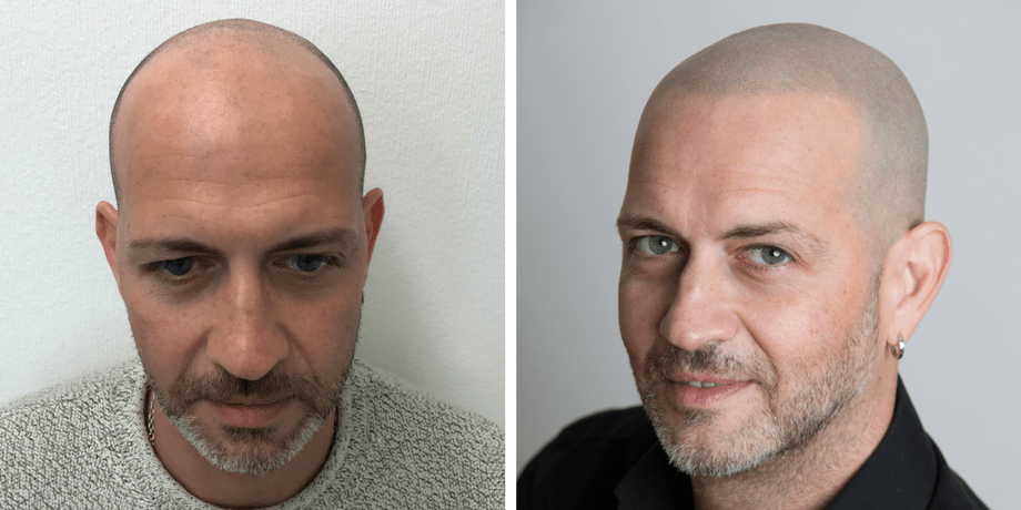 best-shavers-for-men-with-scalp-micro-pigmentation