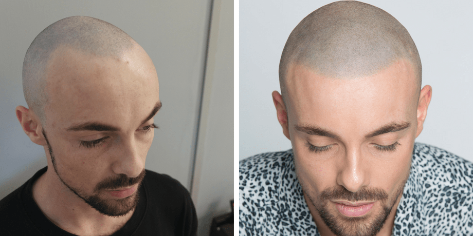 before and after SMP hairline restoration for receding hairline