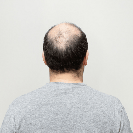 new drug breakthrough Cyclosporine A for hair loss