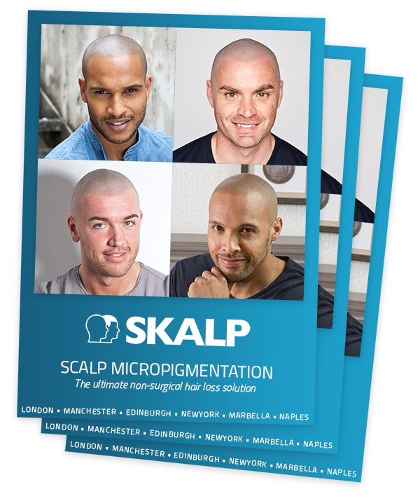 Scalp Micropigmentation Brochure