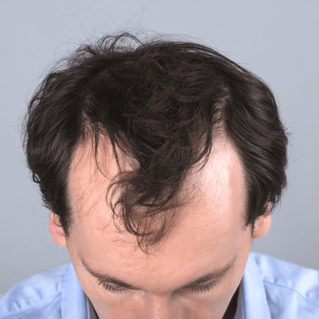 young man with a receding hairline