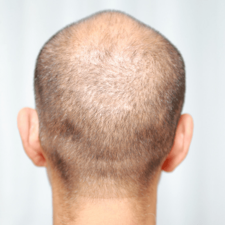 can collagen help with hair loss