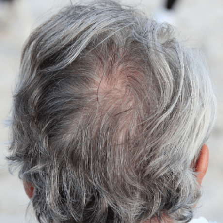 mens hair myths grey hair grows faster
