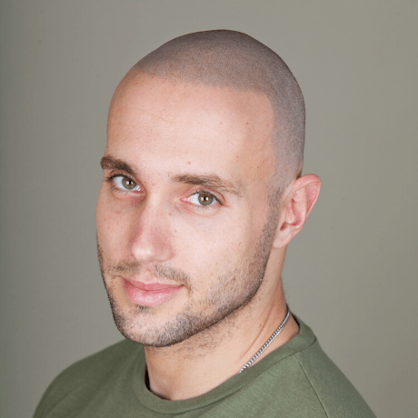 hair tattoo results on attractive bald man