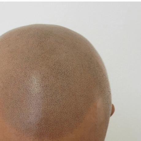 close up of smp