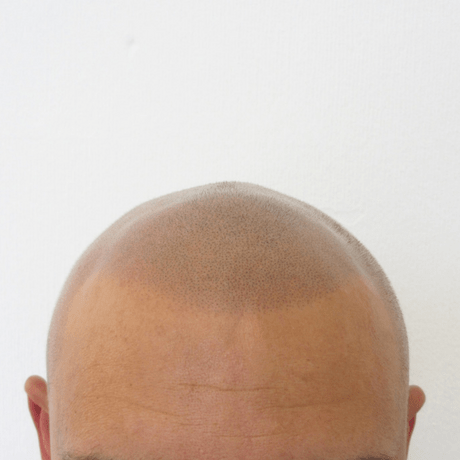 Scalp micropigmentation hair tattoo for hair loss