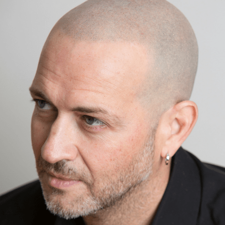 The Real Disadvantages Of Scalp Micropigmentation Skalp
