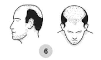 6th stage of male pattern baldness