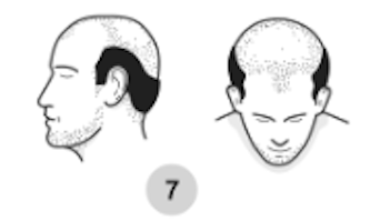norwood hair loss scale stage 7