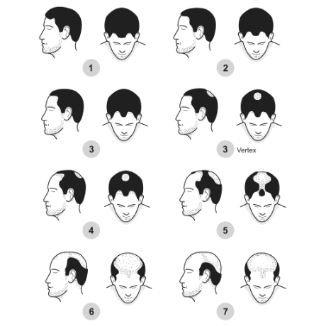 The 7 Stages Of Male Pattern Baldness