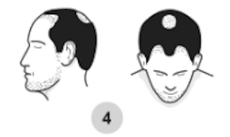 4th stage of male pattern baldness