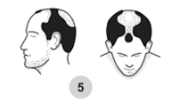5th stage of male pattern baldness