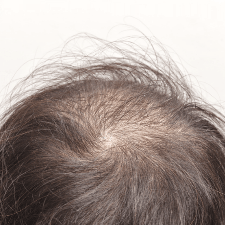 Eczema Drug That Also Grows Hair