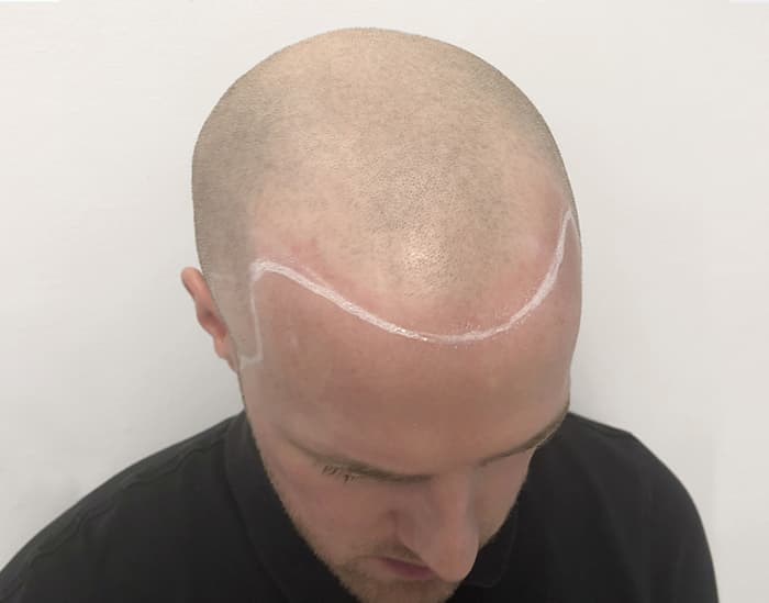 Scalp Micropigmentation before Aaron