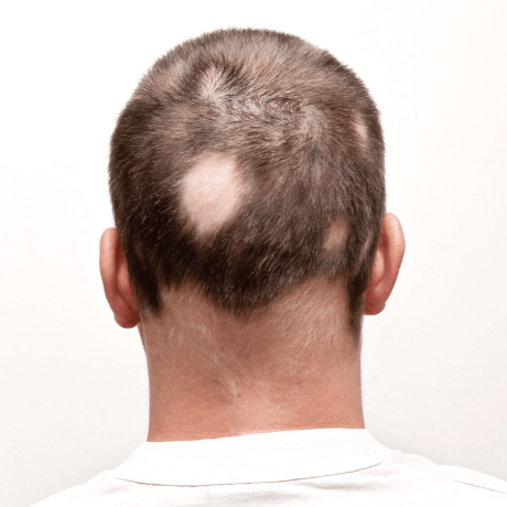 types of hair loss alopecia treatments