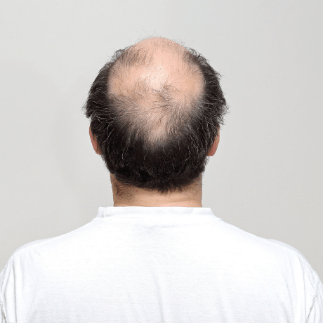 scalp micropigmentation for male pattern baldness