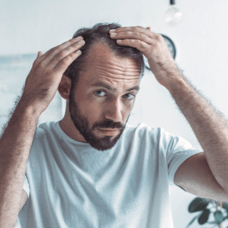 hair loss solutions for receding hairline
