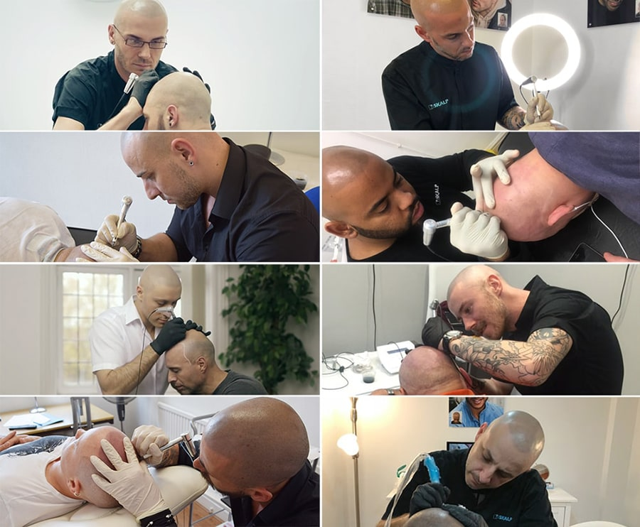 Best Scalp Micropigmentation Practitioners