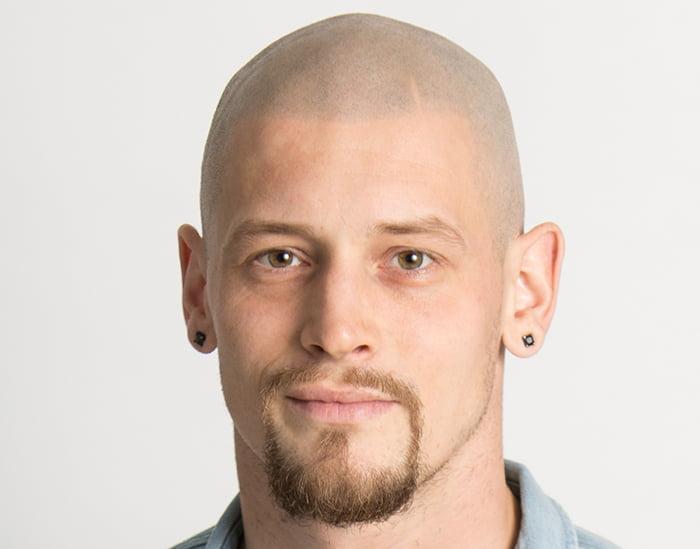 Brandon After Scalp Micropigmentation